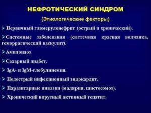 Гломерулонефрит нефротический синдром