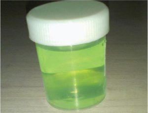 Зеленый цвет мочи