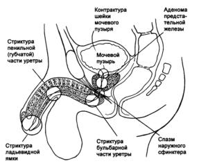 Зуд в уретре у мужчин