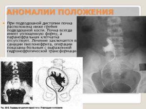 Почка на уровне подвздошной кости