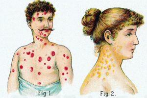 Первые симптомы болезни