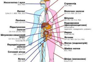 Онкомаркеры опухоли почки