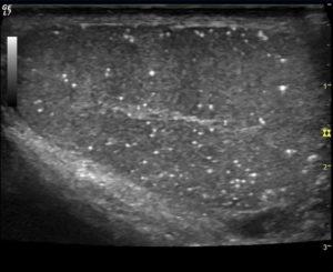 В левой почке микролиты