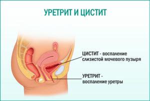 Рези в мочеиспускательном канале у женщин