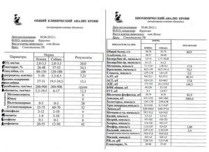 Биохимический анализ крови сроки готовности