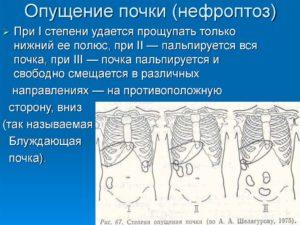 Опущение почки на 9 см лечение
