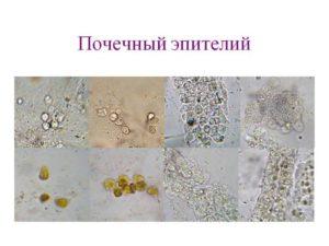 Анализ мочи почечный эпителий