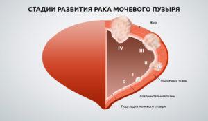 Рак мочевого пузыря прогнозы на жизнь