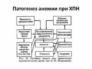 Железодефицитная анемия при хпн