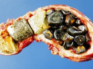 Что такое холецистит почек