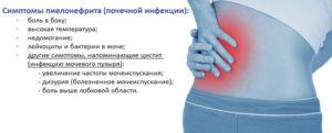 Боль в области почек лечение