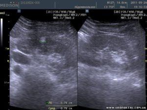 Беременность и гемангиома почки