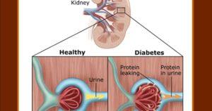 Почки при сахарном диабете 1 типа