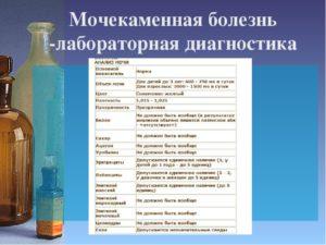 Анализ мочи при мочекаменной болезни