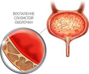 Как восстановить слизистую мочевого пузыря после цистита
