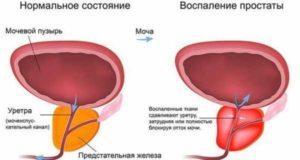Как укрепить мочевой пузырь у мужчин
