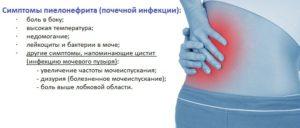 Какие симптомы когда болят почки у женщин