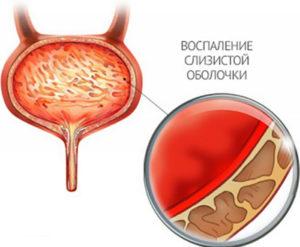 Как лечить мочевой пузырь у женщин