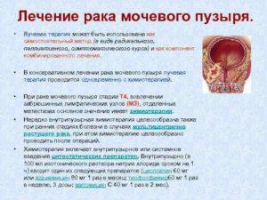 Лечение народными средствами рак мочевого пузыря у мужчин