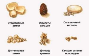 Состав камней в почках по цвету