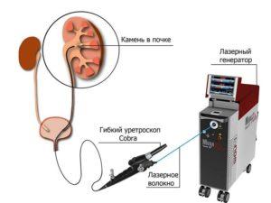 Лечение лазером почки