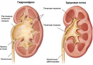 Гидронефроз левой почки у ребенка