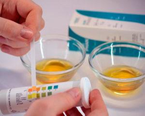 Как лечить сахар в моче