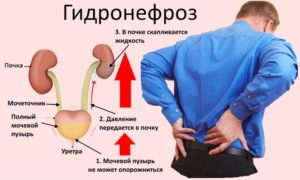 Как вылечить гидронефроз почки