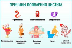 Лечение цистит у подростка