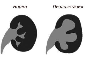 Пиелоэктазия почки слева у новорожденного