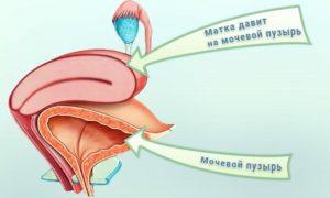 Матка давит на мочевой пузырь причины