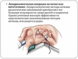 Питание после операции на почки и мочеточник