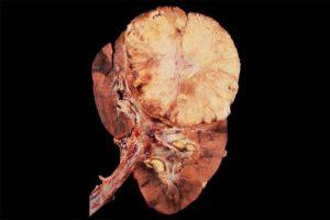 Рак почки википедия