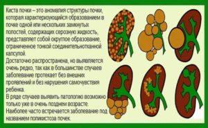 Лекарства при кисте почки