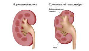 Хронический пиелонефрит почек симптомы