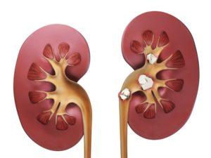 Мочекислые камни в почках лечение и профилактика