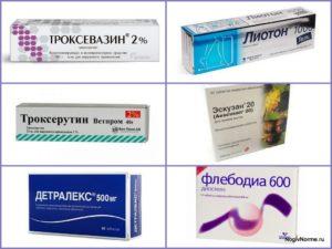 Лекарство от опухоли ног