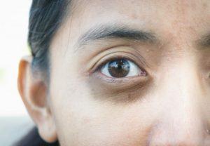 Почки и синяки под глазами