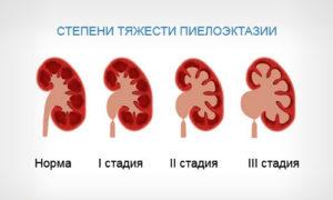 Пиелоэктазия почек у ребенка 3 лет