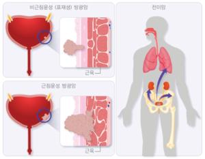 Кровь после мочеиспускания у женщин с болью