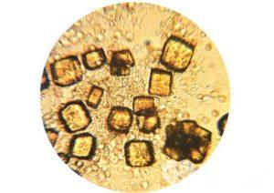 Кристаллы мочевой кислоты в почках