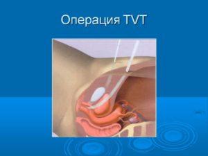Недержание мочи после операции цистоцеле