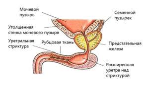 Сужение мочевого канала у мужчин лечение