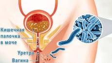 Кишечная палочка в уретре у мужчин симптомы
