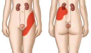 Болит левая почка и частое мочеиспускание