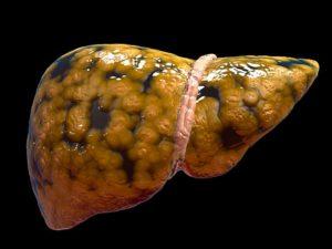 Жировой гепатоз почек что это