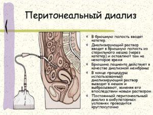 Что такое перитонеальный диализ
