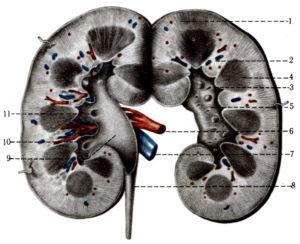 Диффузные изменения структур почечных синусов почек