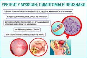Уреаплазменный уретрит у мужчин симптомы и лечение