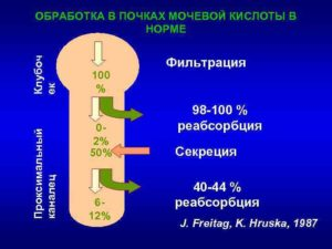 Влияние мочевой кислоты на почки
